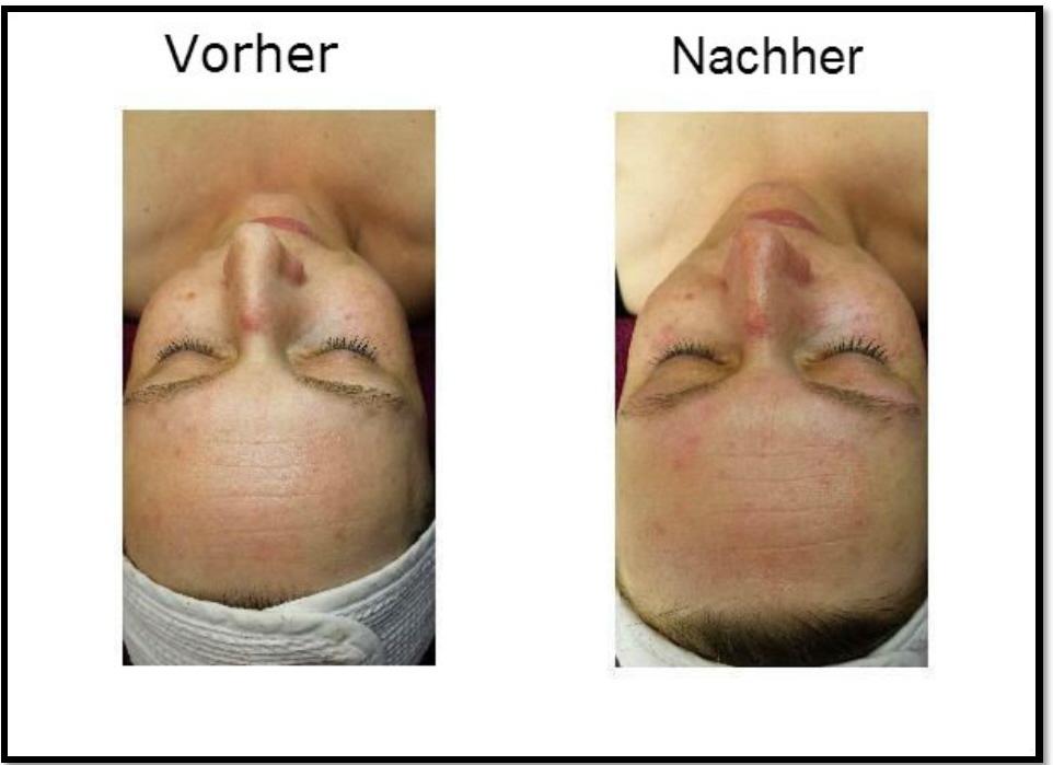 Gesichts Behandlung Kosmetikstudio Papillon