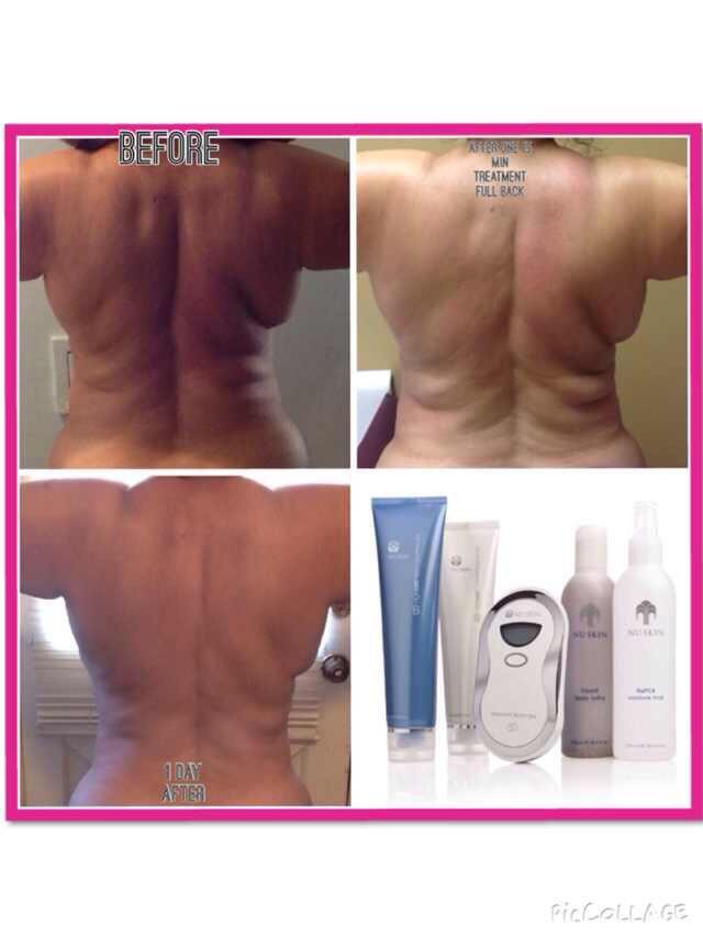 Rücken Behandlung Kosmetikstudio Papillon