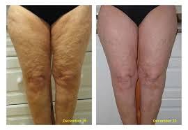 Beine Behandlung Haut Creme Kosmetikstudio Papillon